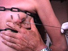 Pricking of nipple