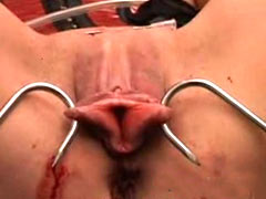 Big hooks in labia