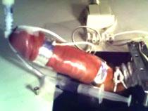 Medical electro device