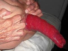 Torture of rectum