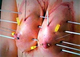 Cruel insertion a dozen long skewers in tits